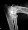 adha-elbows-2